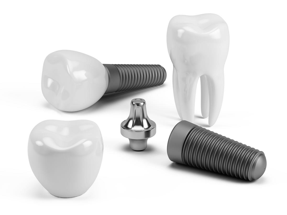 Vancouver Dentist Dental Implants