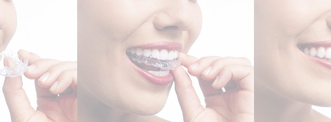 Can You Have an Allergic Reaction to Invisalign?