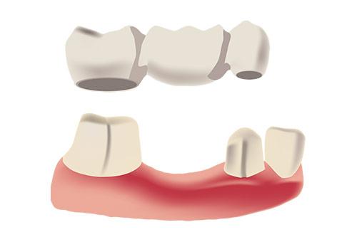 dental-bridge-vancouver