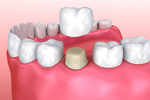 dental crowns vancouver
