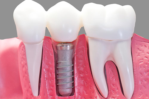 dental implants vs bridges vancouver