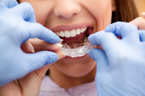 invisalign dentist vancouver
