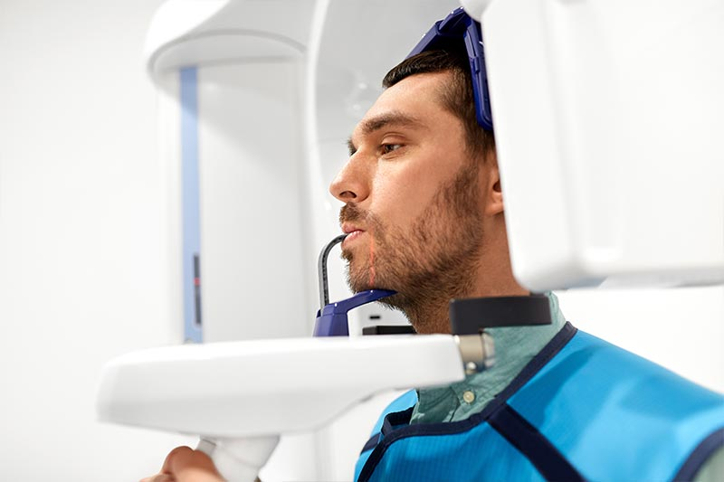 Xray CBCT Machine South Vancouver